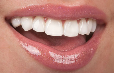 cosmetic-dentistry-image