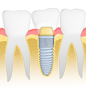 dental-implant-image