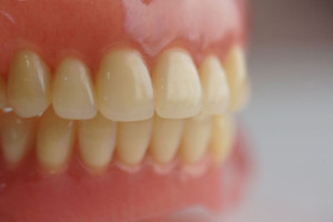 denture-image