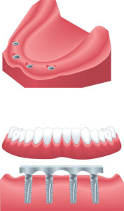 implant-denture-image